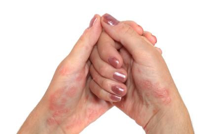 psoriasis_hands