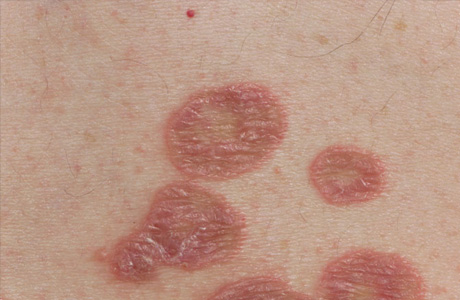 Annular lichen planus | Genetic and Rare Diseases ...