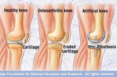 image_osteoarthritis%20knee
