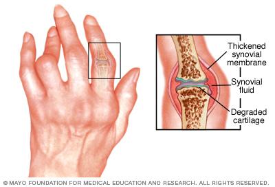 r7_rheumatoidarthritis